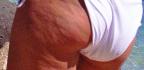 Masážní rukavice nacelulitidu