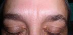 Ukládání cholesterolu na očním víčku