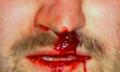 Zranění v nose