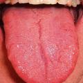 Nemoci podle jazyka