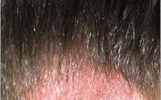 Suchá a šupinatá pokožka hlavy