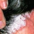Lupénka ve vlasech