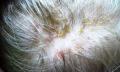 Ekzém ve vlasech