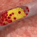 Tuky v krvi