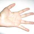Pocit nedokrvených rukou