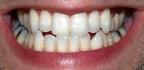 Zánět zubu