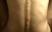 Bolesti zad arakovina tlustého střeva