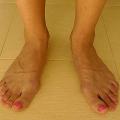 Cukrovka abolesti nohou